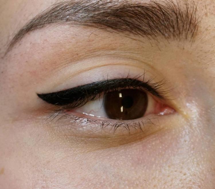 Il pigmentary nota su un trattamento del corpo di una fotografia
